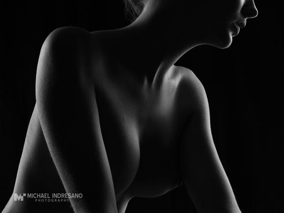 2014175_Hologc_ASRM_Stomach1_0184